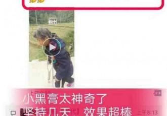 坐轮椅一年多的妈妈使用小黑膏后可以拄拐杖走路了
