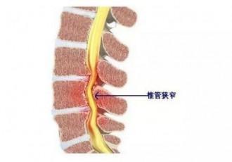 腰椎管狭窄贴敷花红小黑膏效果反馈
