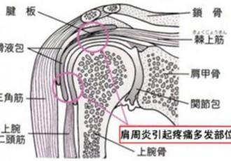 肩周炎可以贴小黑膏吗?小黑膏针对肩周炎的贴法