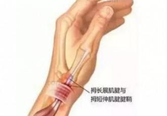 小黑膏对腱鞘炎有用吗?腱鞘炎怎么贴小黑膏