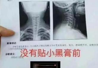 颈椎病贴了半年小黑膏的前后变化