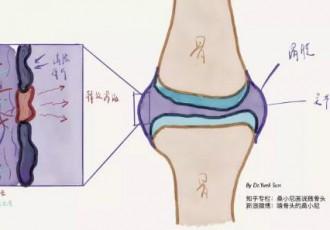 膝盖痛伴有肿胀使用小黑膏的效果反馈