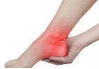 脚跟骨刺多年,用小黑膏一个月基本不疼了