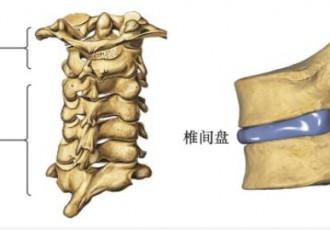 什么是颈椎间盘突出症?