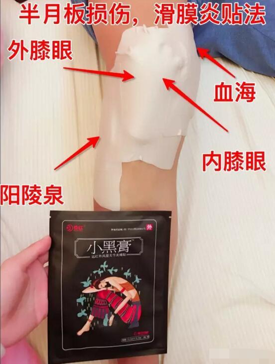 半月板损伤和滑膜炎贴小黑膏的方法