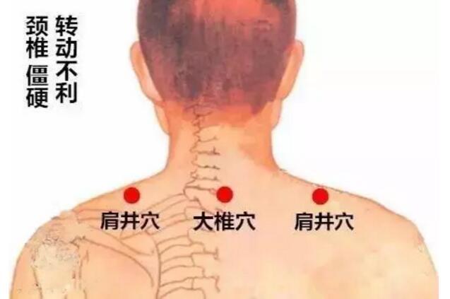 颈椎僵硬贴法
