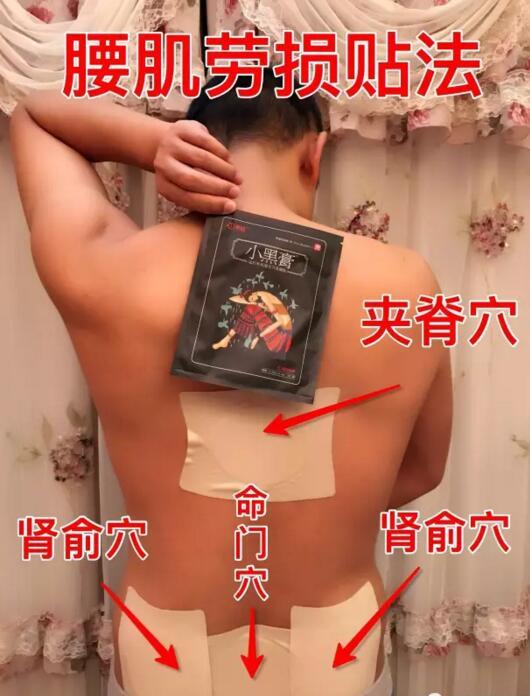 腰肌劳损贴法图片