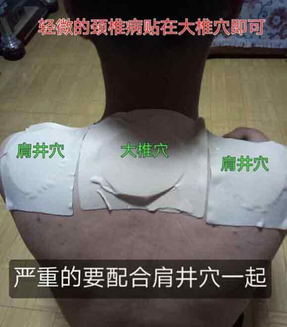 小黑膏颈椎病的常用贴法