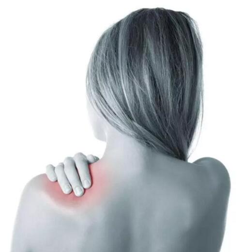 小黑膏治肩周炎么?肩周炎贴小黑膏怎么贴? 经验分享 第1张