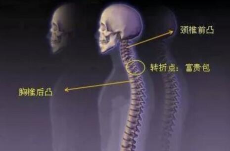 """颈椎上面有一个大包,俗称""""富贵包""""怎样才能消除它 第2张"""
