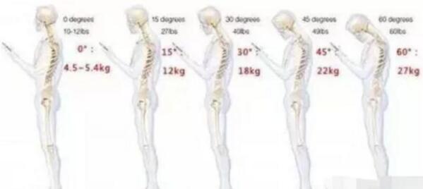 """颈椎上面有一个大包,俗称""""富贵包""""怎样才能消除它 第3张"""