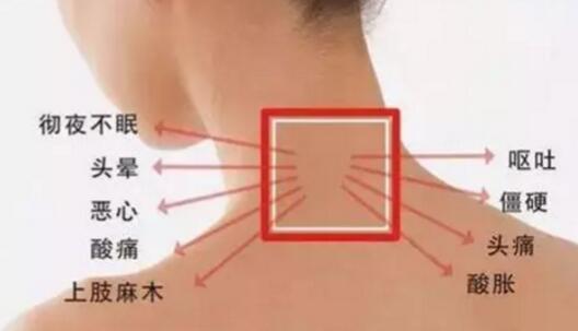 """颈椎上面有一个大包,俗称""""富贵包""""怎样才能消除它 第5张"""