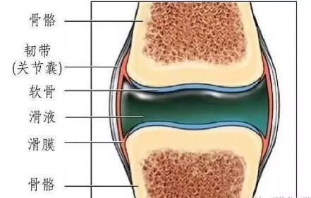 滑膜炎关节积液,一抽了之永绝后患吗 第2张