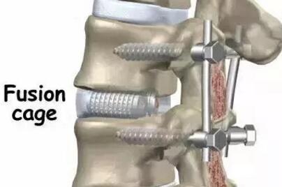 颈椎疼痛脖子不舒服就用花红小黑膏 第1张