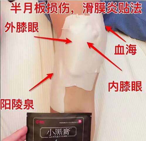 滑膜炎用小黑膏后的真实反馈 第4张