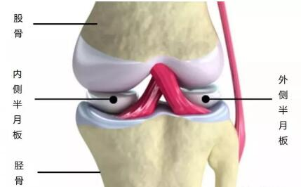 半月板损伤有哪些症状 贴小黑膏管用吗 第1张