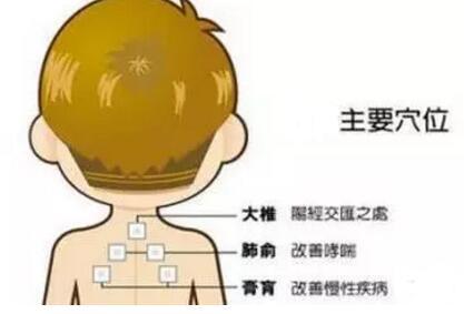 落枕与肩痛的特定穴之肩井穴 第3张