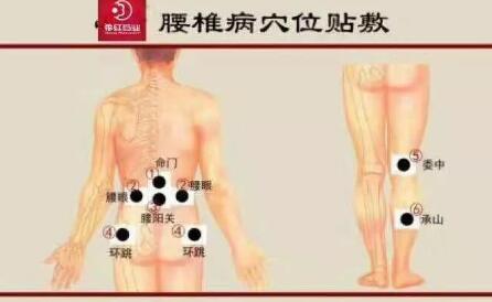 花红小黑膏常见病症,穴位贴敷指导 第3张