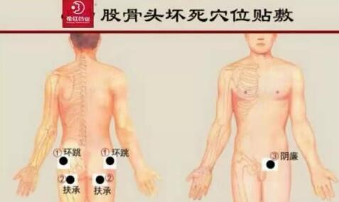花红小黑膏常见病症,穴位贴敷指导 第8张