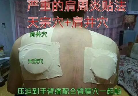 花红小黑膏常见病症,穴位贴敷指导 第12张