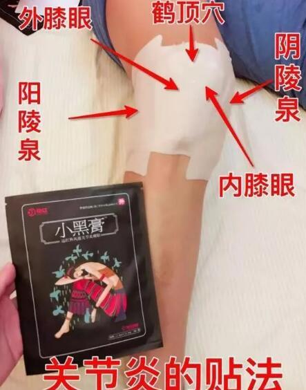花红小黑膏常见病症,穴位贴敷指导 第13张