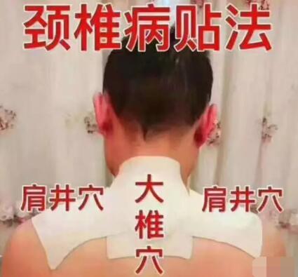 颈椎有问题怎么办,小黑膏帮你解决