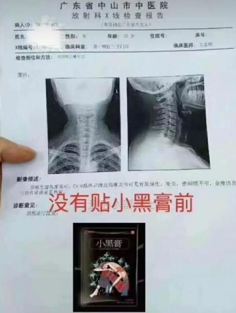 颈椎病贴了半年小黑膏的前后变化 第1张