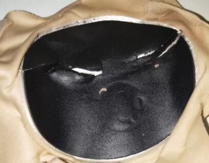 贴小黑膏后药膏裂是怎么回事