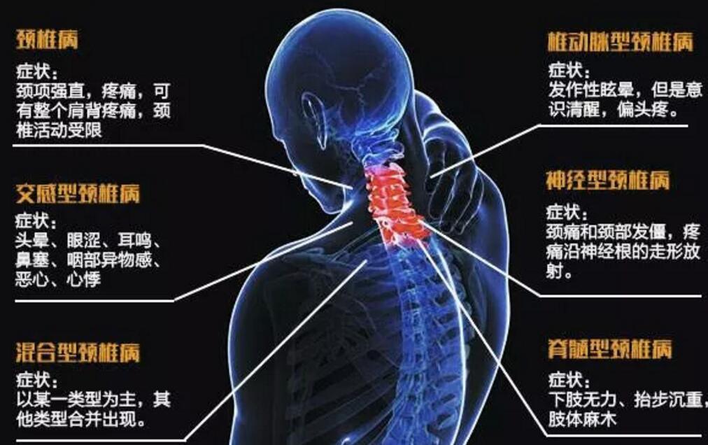 颈椎病引起的头晕,怎么治疗有效?