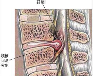 颈椎间盘突出与颈椎间盘突出症有区别