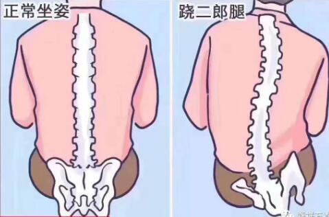 正确站姿避免颈椎病